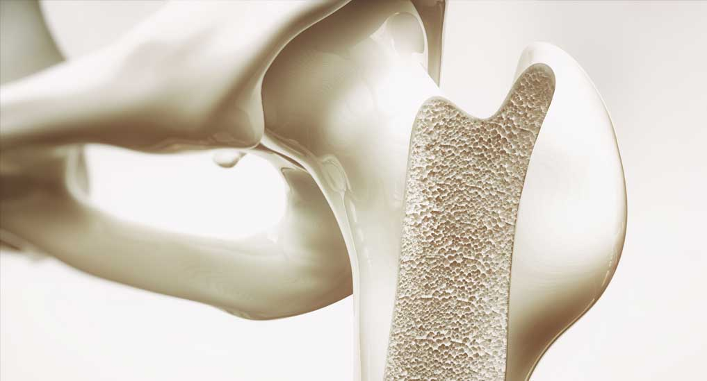 Silk-based bone graft revealed extensive bone formation