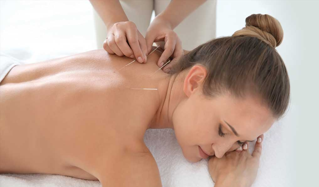 Acupuncture to be recognized in India