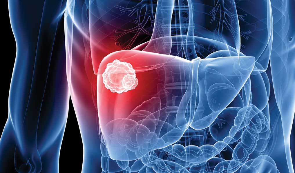 Adiponectin plays key in male bias of liver cancer