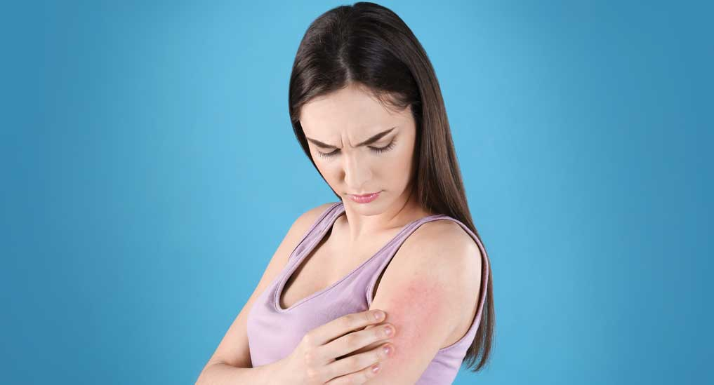 KIF3A gene variations key in developing eczema:Study