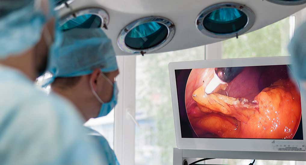 Global endoscope market expected to grow at CAGR of 7.4% by 2025: GlobalData