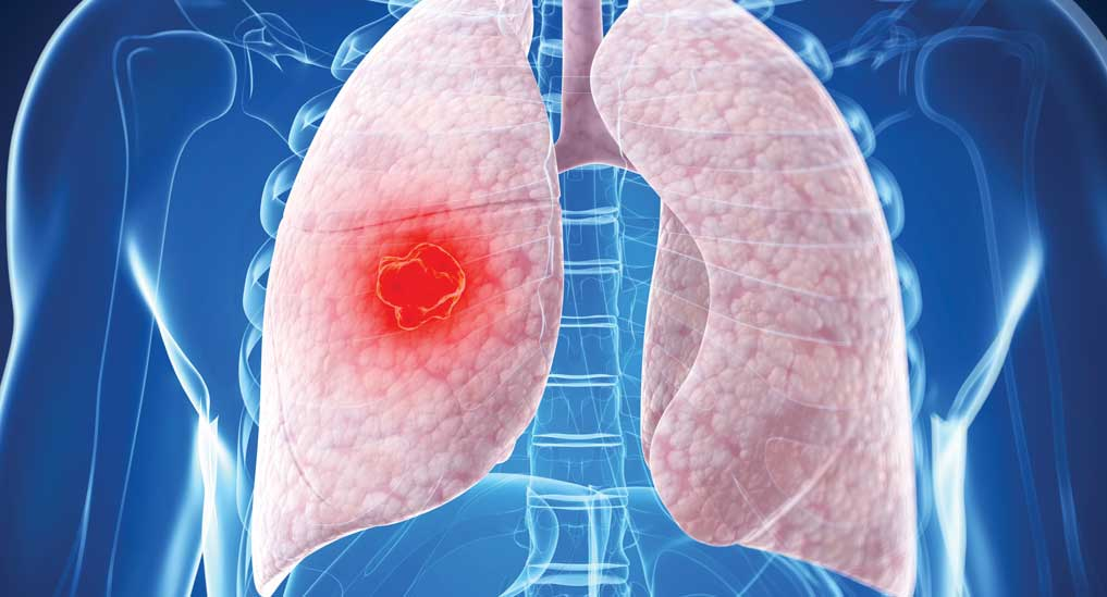 Entrectinib to treat patients with NTRK solid tumours