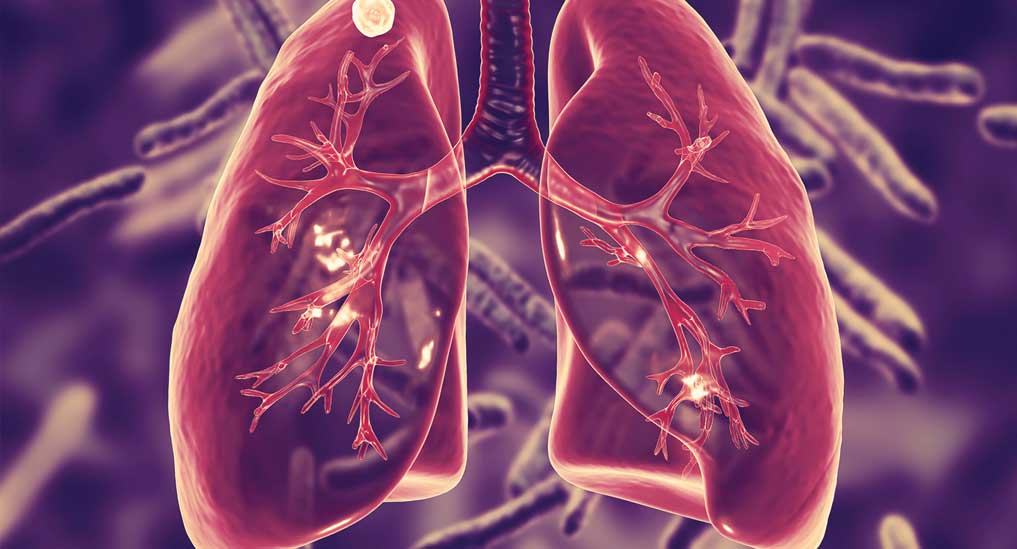 Lymphoid cells play unexpected role in early TB infection