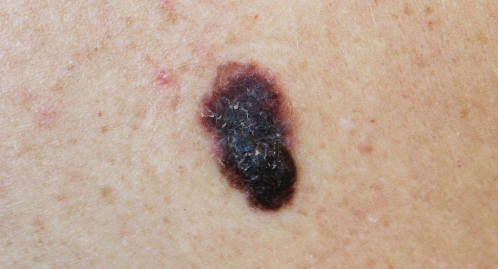 Novel nano-vaccine could boost melanoma therapy
