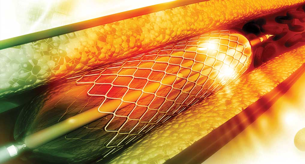 The stent-phobia
