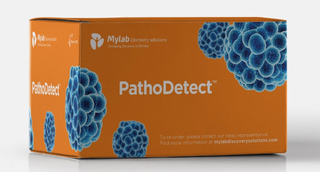 PathoDetect COVID-19 detects infection within 2.5 hours: Mylab