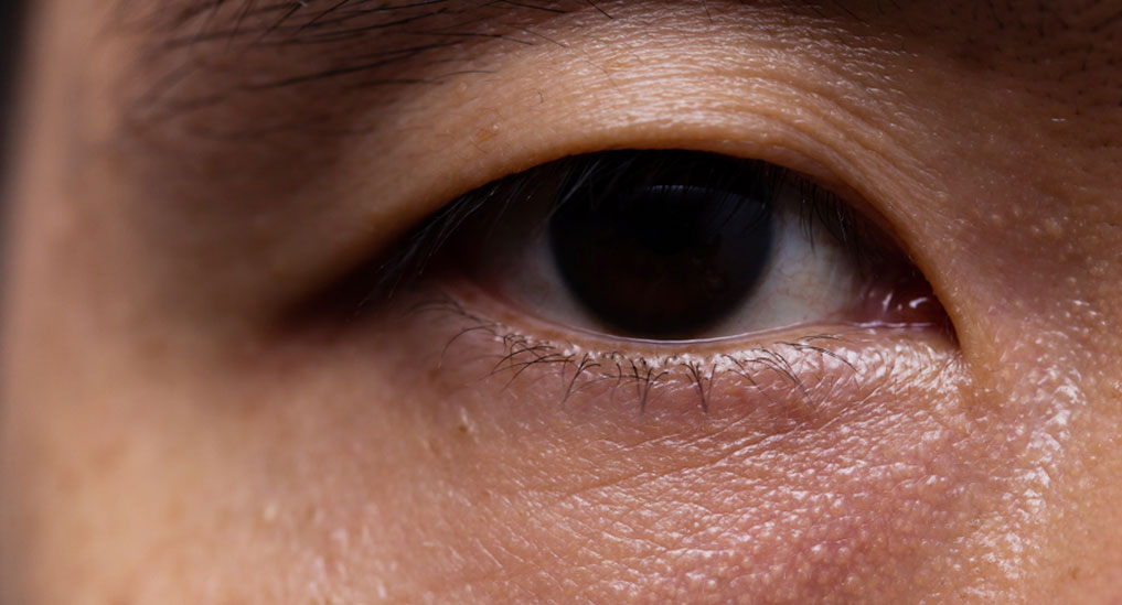 Oxymetazoline 0.1% solution receives US FDA nod for treatment of ptosis