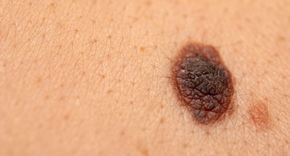 Atezolizumab plus cobimetinib and vemurafenib approved for advanced melanoma