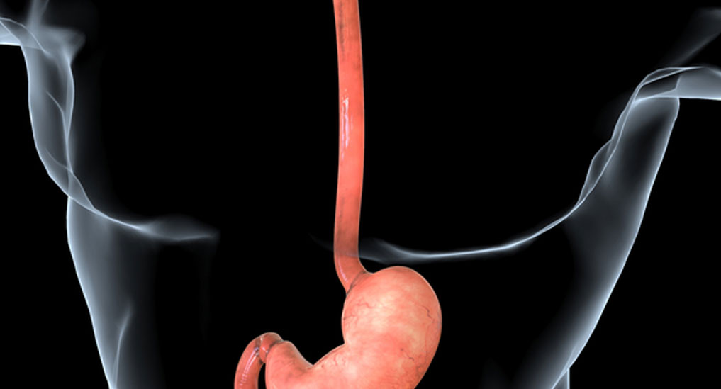 Risk of the prevalence of Barrett's oesophagus may up after sleeve gastrectomy