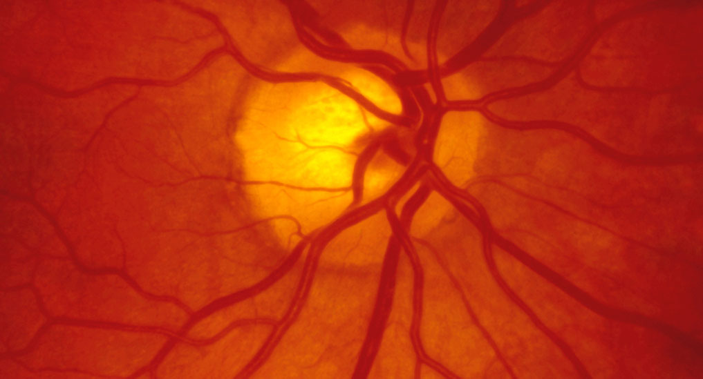 Retinal vein occlusion linked with a higher risk of dementia