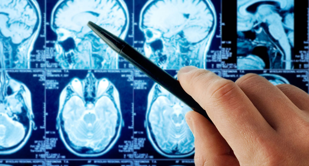 Recurrence risk of astrocytoma is nearly twice in adult patients: Study