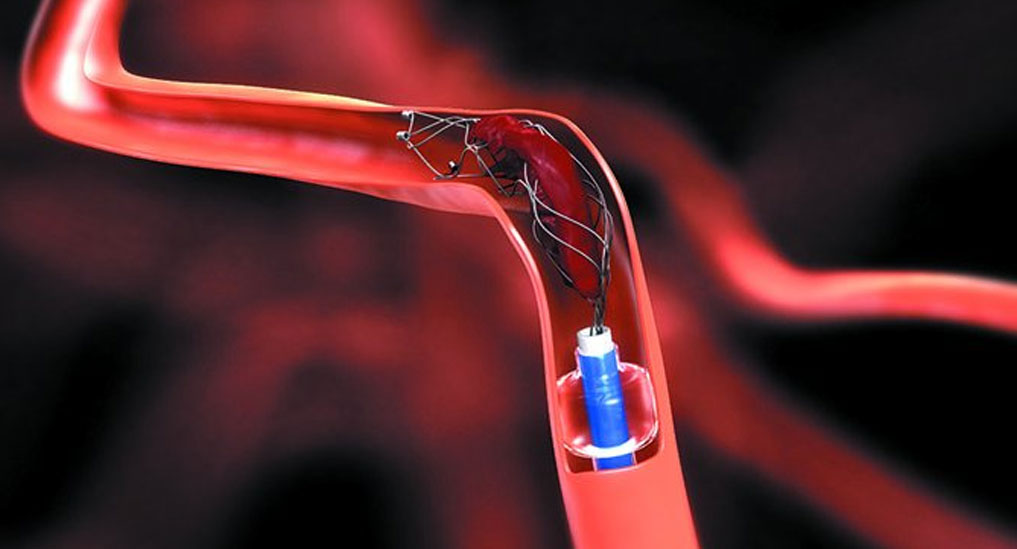 Neurovascular thrombectomy devices market to grow 6%  through 2025 in APAC region: GlobalData