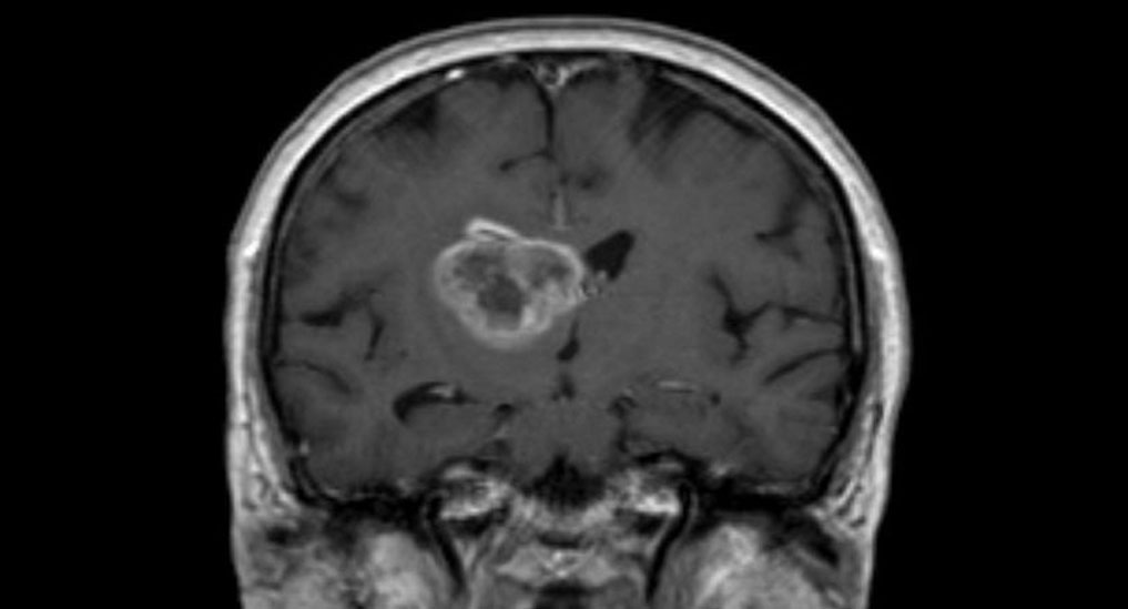 Glioblastoma recurrence could be detected 6 months early: Study