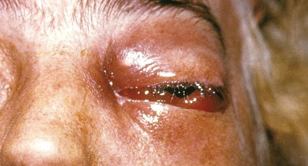 Screening, Diagnosis & Management of Mucormycosis